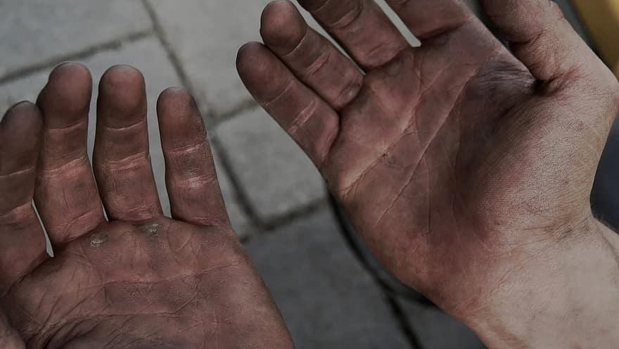 ujjak s tenyerek kezels pikkelysmr