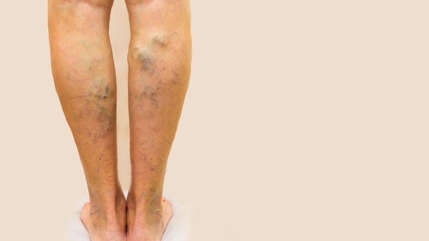 a lábak krónikus visszerei vörös foltok)