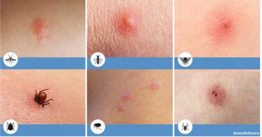 vörös érdes foltok a bőr kezelésén