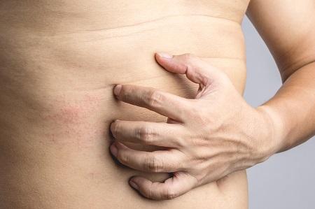 mik a piros foltok a gyomorban és a háton