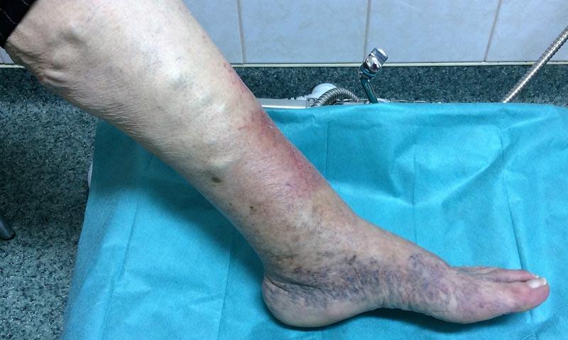 fekete és piros foltok a lábakon