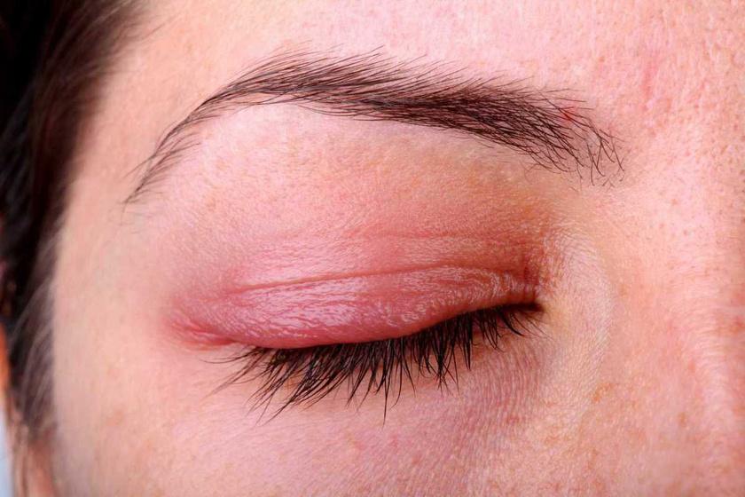 a szemhéjon, vörös foltok viszketés kezelése)