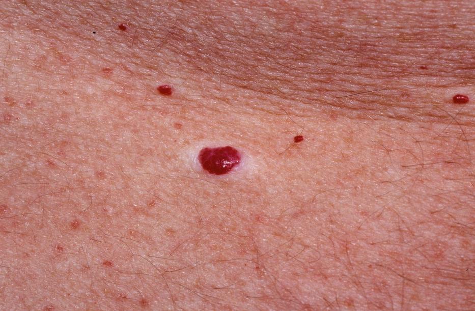 vörös foltok a bőrön hasnyálmirigy-gyulladással
