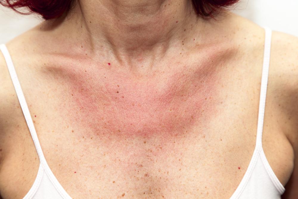 Piros foltok felnőtteknél bőrkiütés formájában, viszketés nélkül