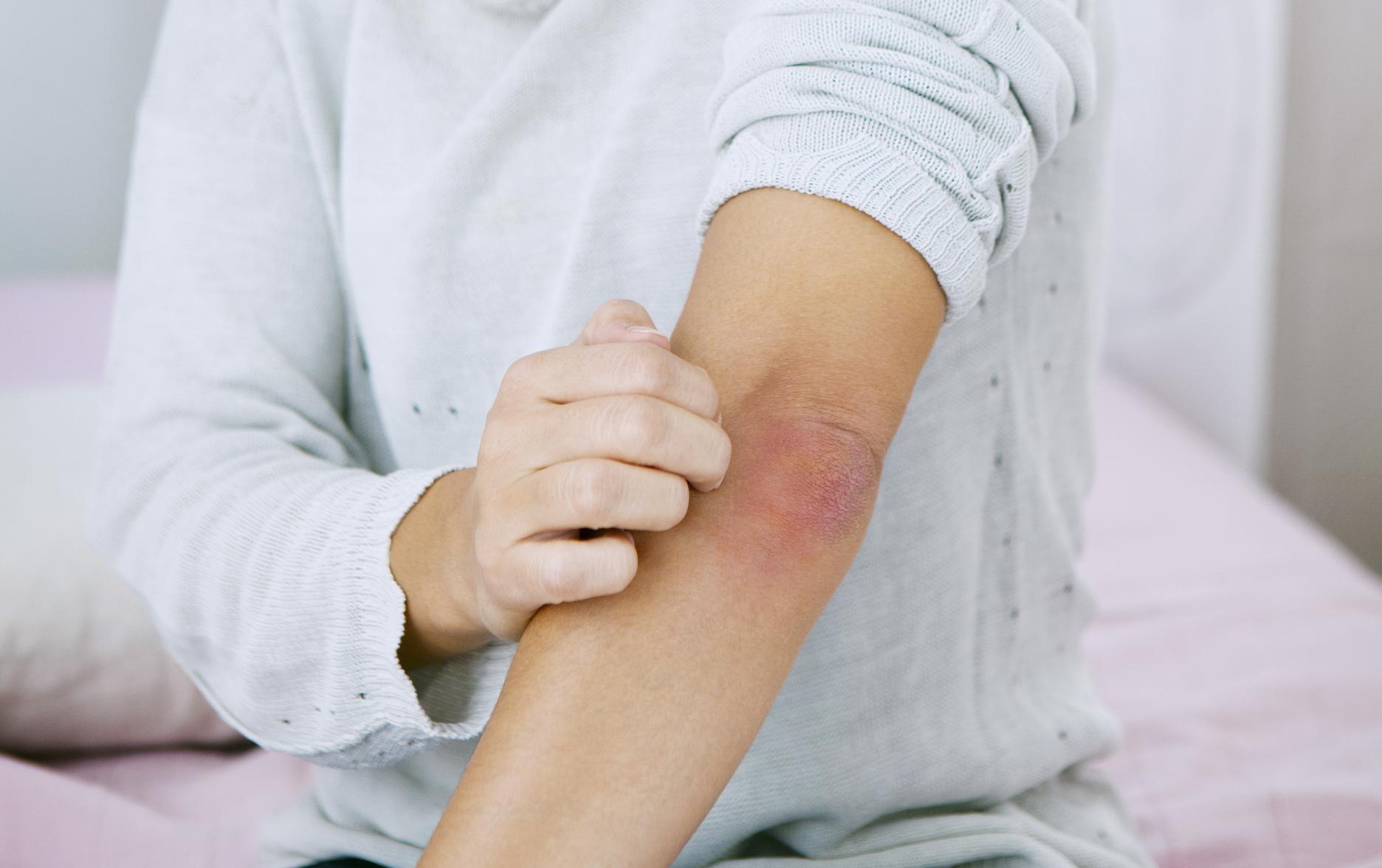 hogyan kell kezelni a kezt s az ujjak pikkelysömörét