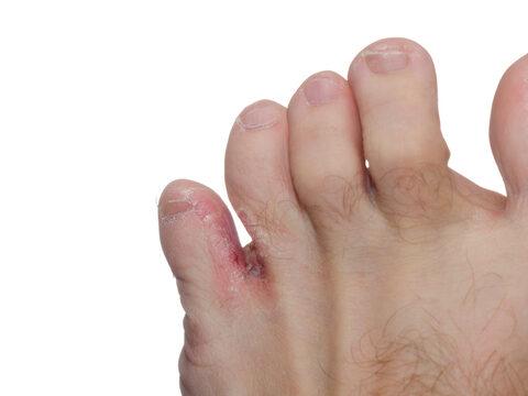 piros foltot dörzsölt a lábam között