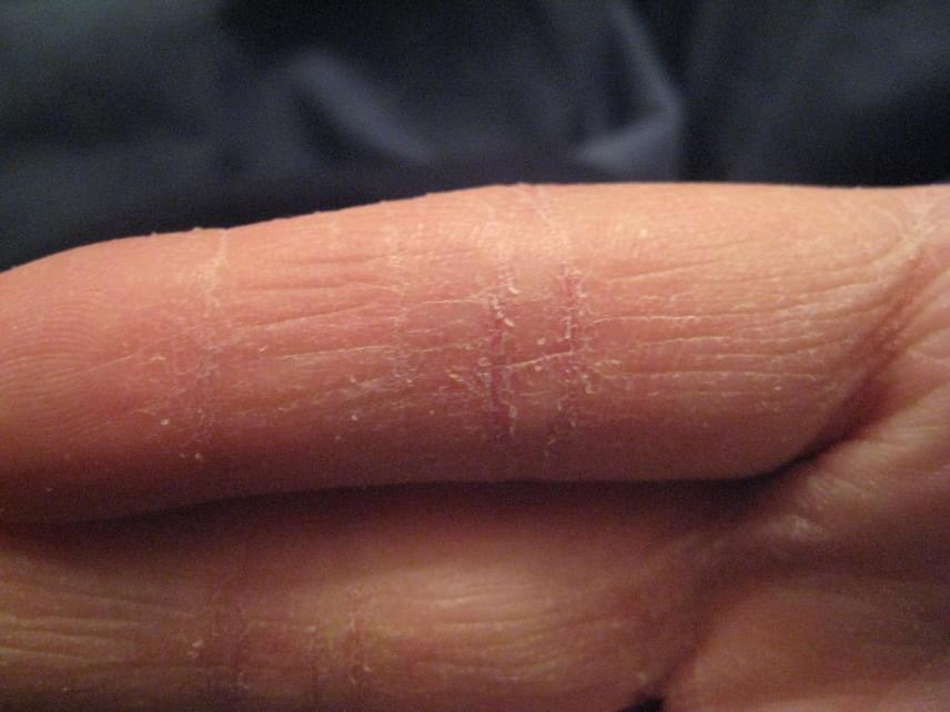 száraz piros foltok a kezek fotó