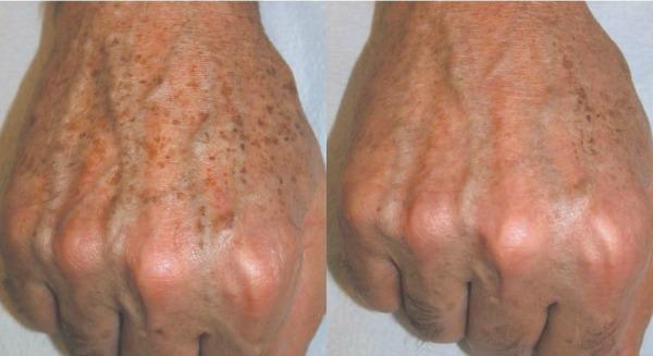 fehérítő bőr vörös foltoktól