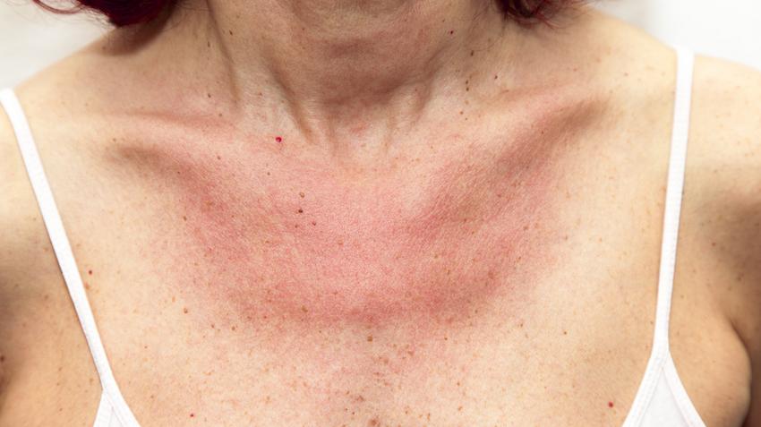 vörös foltok a testen, hámló bőr)