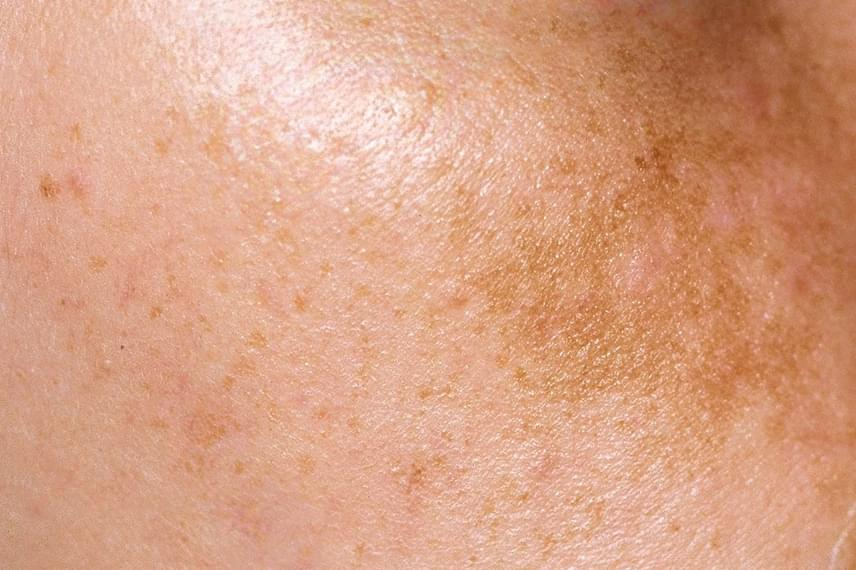 vörös foltok jelentek meg a testen, mit viszket bojtorján gyökérrel pikkelysömör kezelése