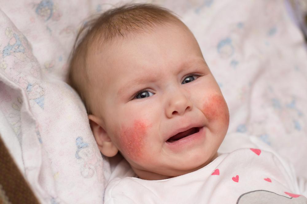vörös foltok jelentek meg az arcon és a kezeken)