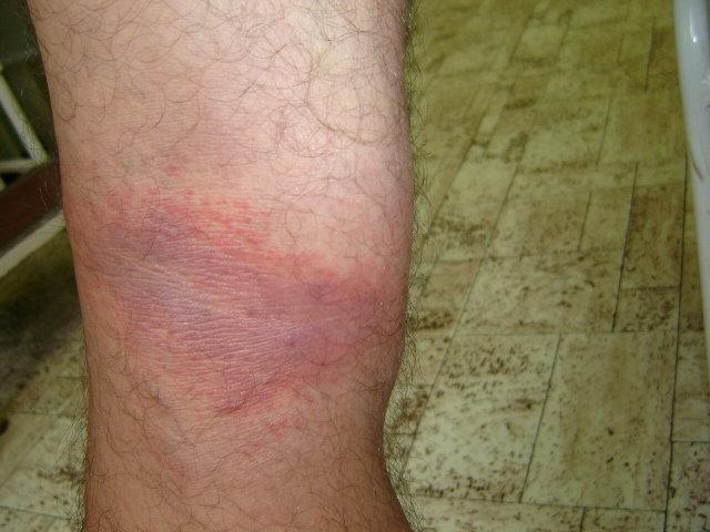 egy nagy vörös folt a bőrön fáj)