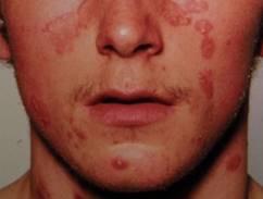 pikkelysömör és kezelése az arcon