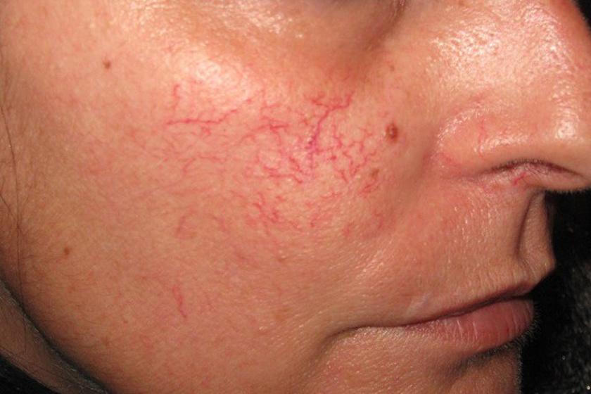 szárított vörös folt az arcon