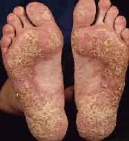 pikkelysömör nagyon kiöntötte kezelésére a pikkelysmr patogenetikai kezelse