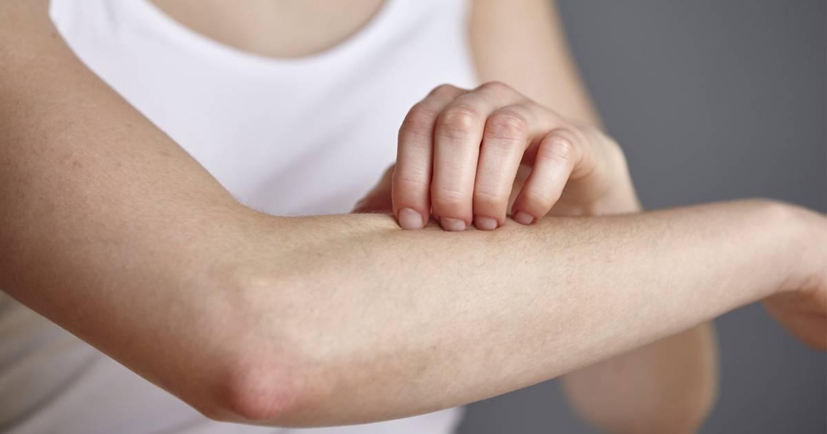 Gyakran előforduló bőrbetegségek 0-3 éves korú gyermekeknél