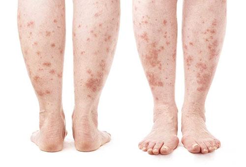 vörös foltos zúzódás jelent meg a lábán)