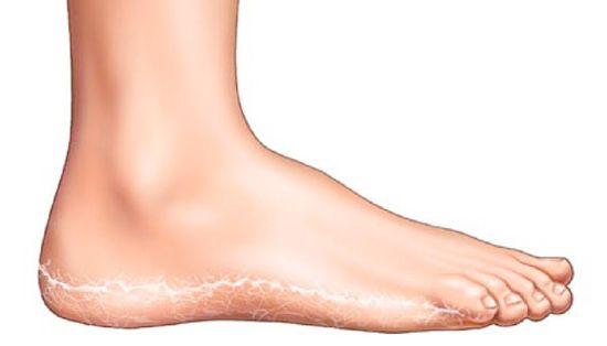 a lábak duzzadtak és vörös foltok borítják