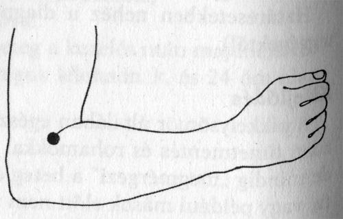 akupunktúrás pikkelysömör hogyan kell kezelni
