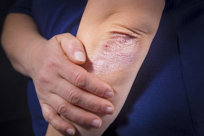 a pikkelysömör gyógynövényes kezelése a torsunov szerint