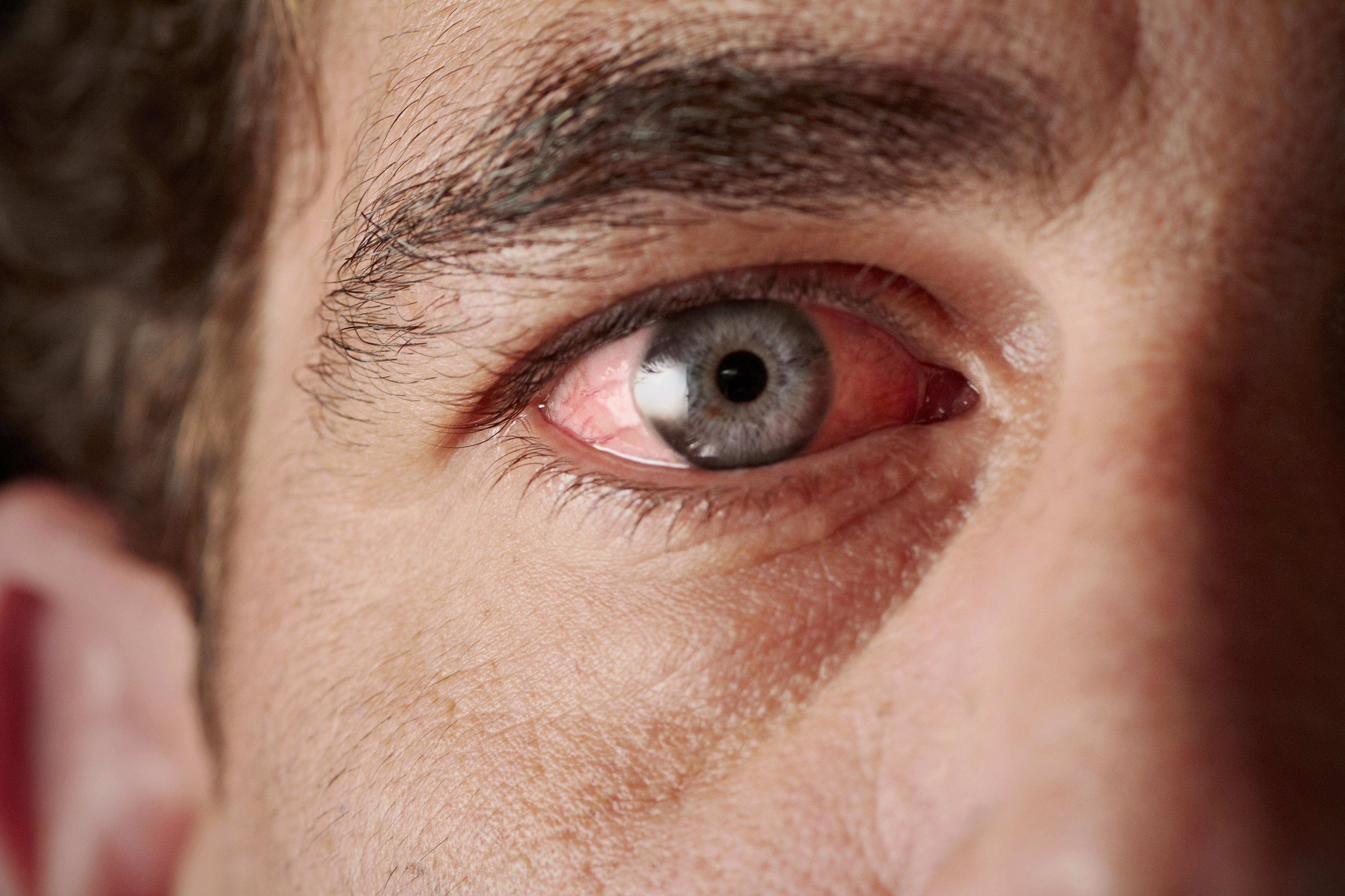 vörös foltok a szem alatt és pikkelyesek