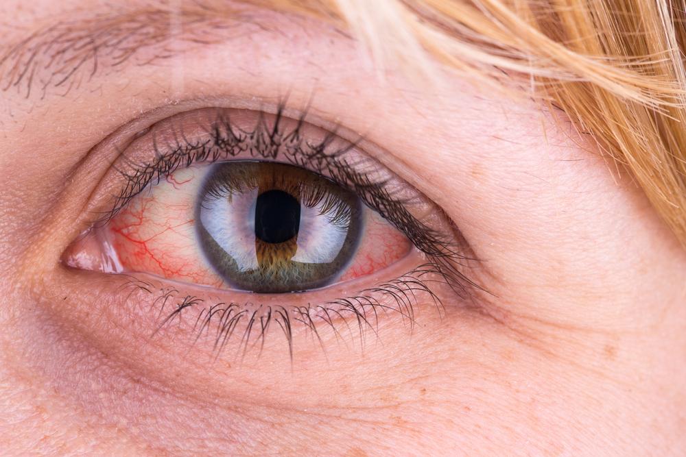 a szem alatt egy vörös folt hámlik le, ami van)