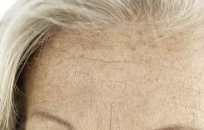 az öregségi foltok vörösek