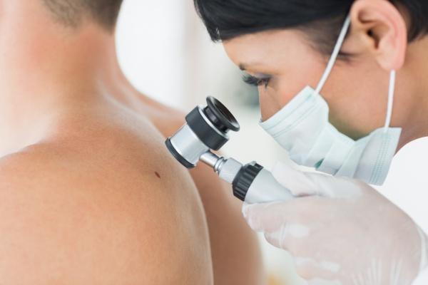 A bőrön lévő foltok akkor jelennek meg, amikor meleg vagy zavaros - Klinikák