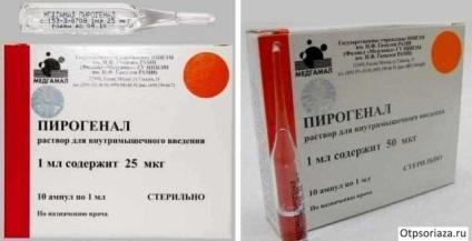 kalcium-glükonát injekciók pikkelysömör kezelésére)