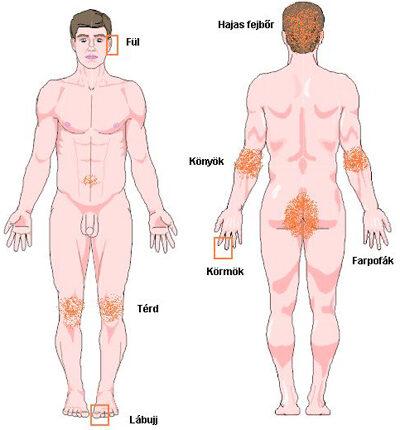 Terápiák pikkelysömörre