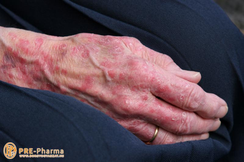 Télen rosszabbodnak a pikkelysömör tünetei
