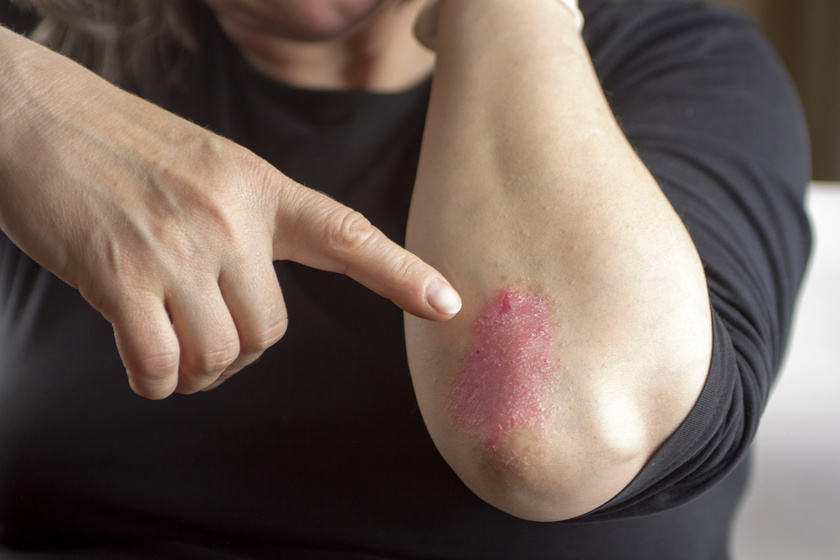 Eucerin®: A bőrről | Psoriasis - tünetek, okok és megoldások