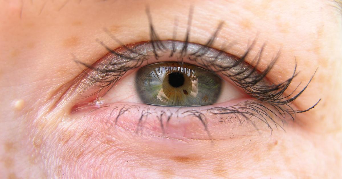 vörös foltok jelentek meg a szem alatt, és lehámozódtak
