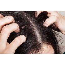 Pikkelysömör a hajas fejbőrön