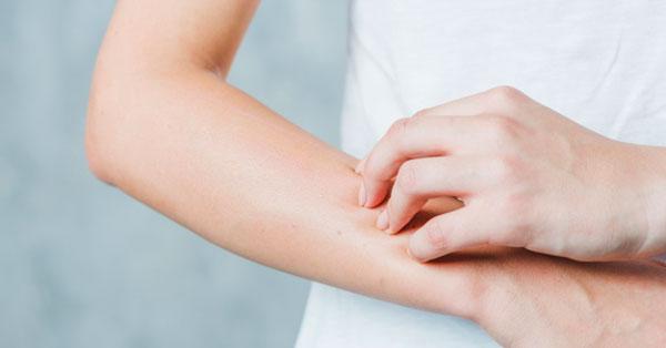 vörös folt a kezén viszket és fáj