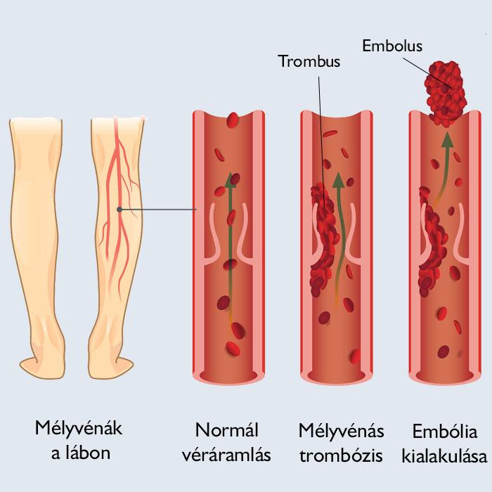 vörös foltok és zúzódások a lábakon)
