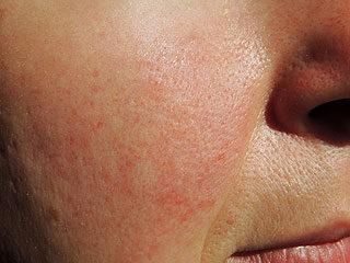 amelyből az orr közelében lévő arcon vörös foltok vannak)