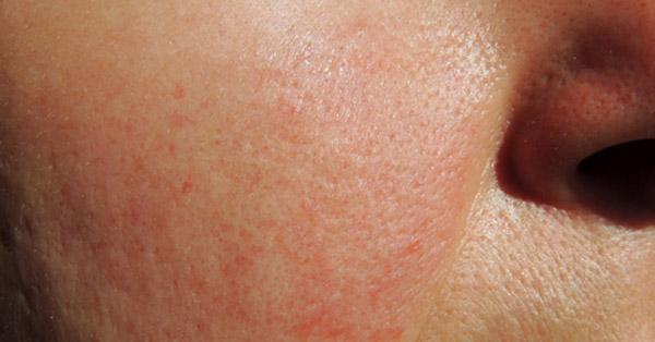 vörös folt az arcon a bőr alatt)
