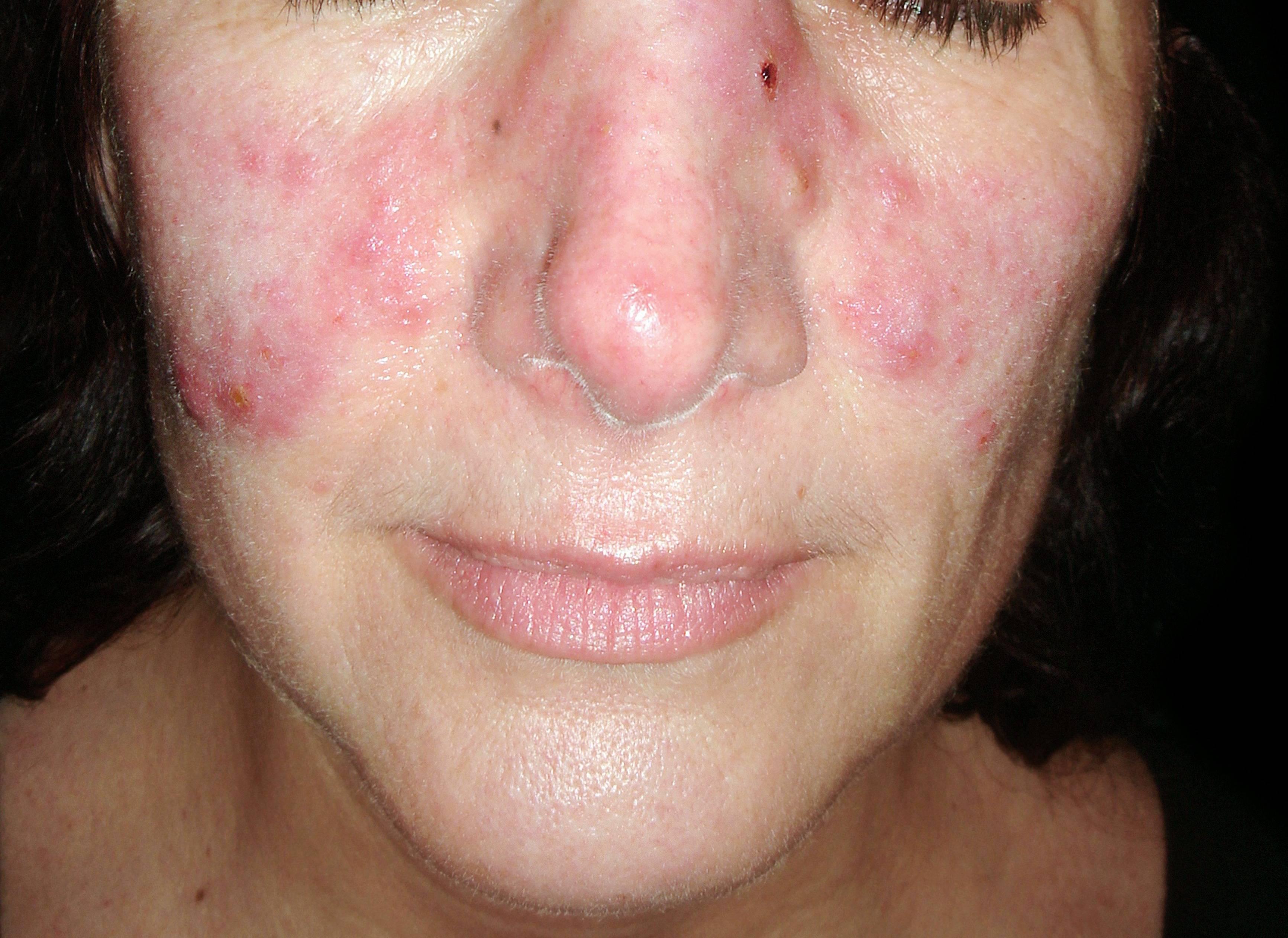 vörös foltok az arcon és a fejen mi ez bojtorján gyökérrel pikkelysömör kezelése