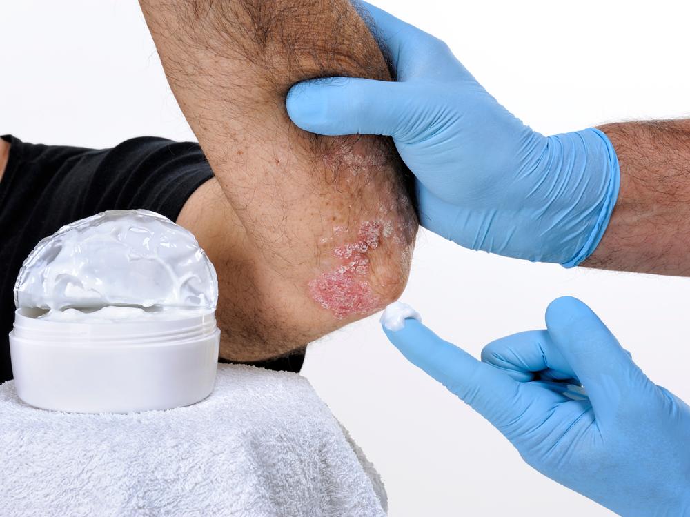 vörös foltok a testen versicolor kezelés pikkelysömör kezelésére gyógyszerek árak