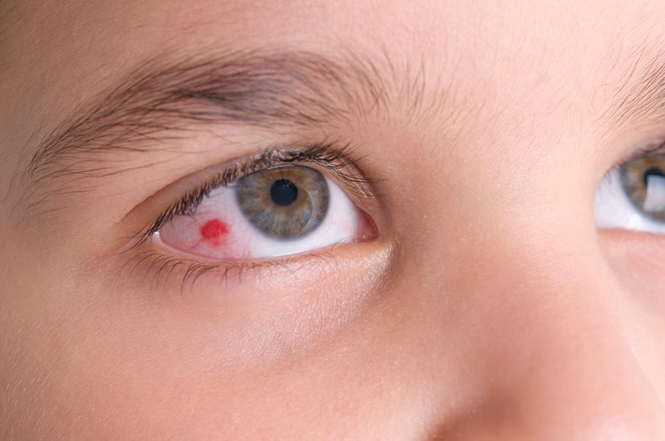 vörös foltok jelentek meg a szem alatt, és lehámozódtak bőrkiütés vörös foltok formájában, viszketéssel az idegen