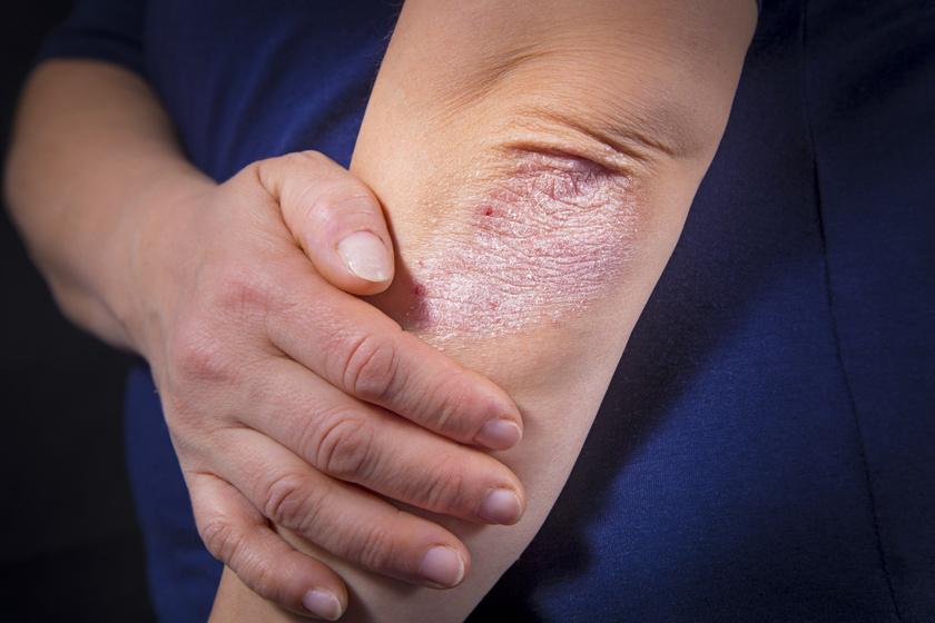 A pikkelysömör tünetei