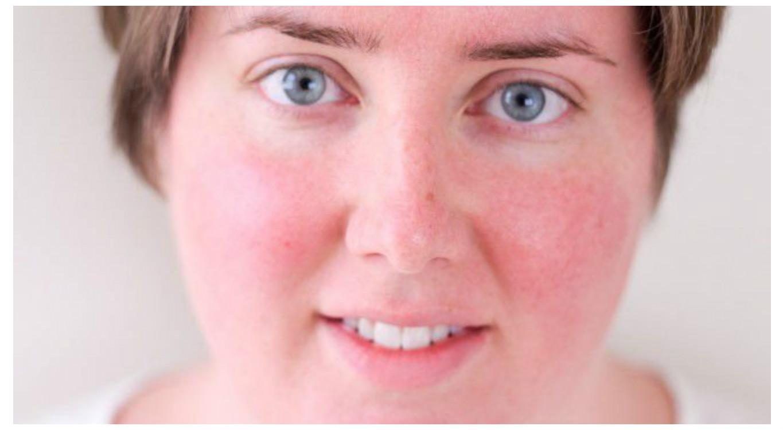 hogyan lehet megszabadulni a vörös bőrfoltoktól az arcon)