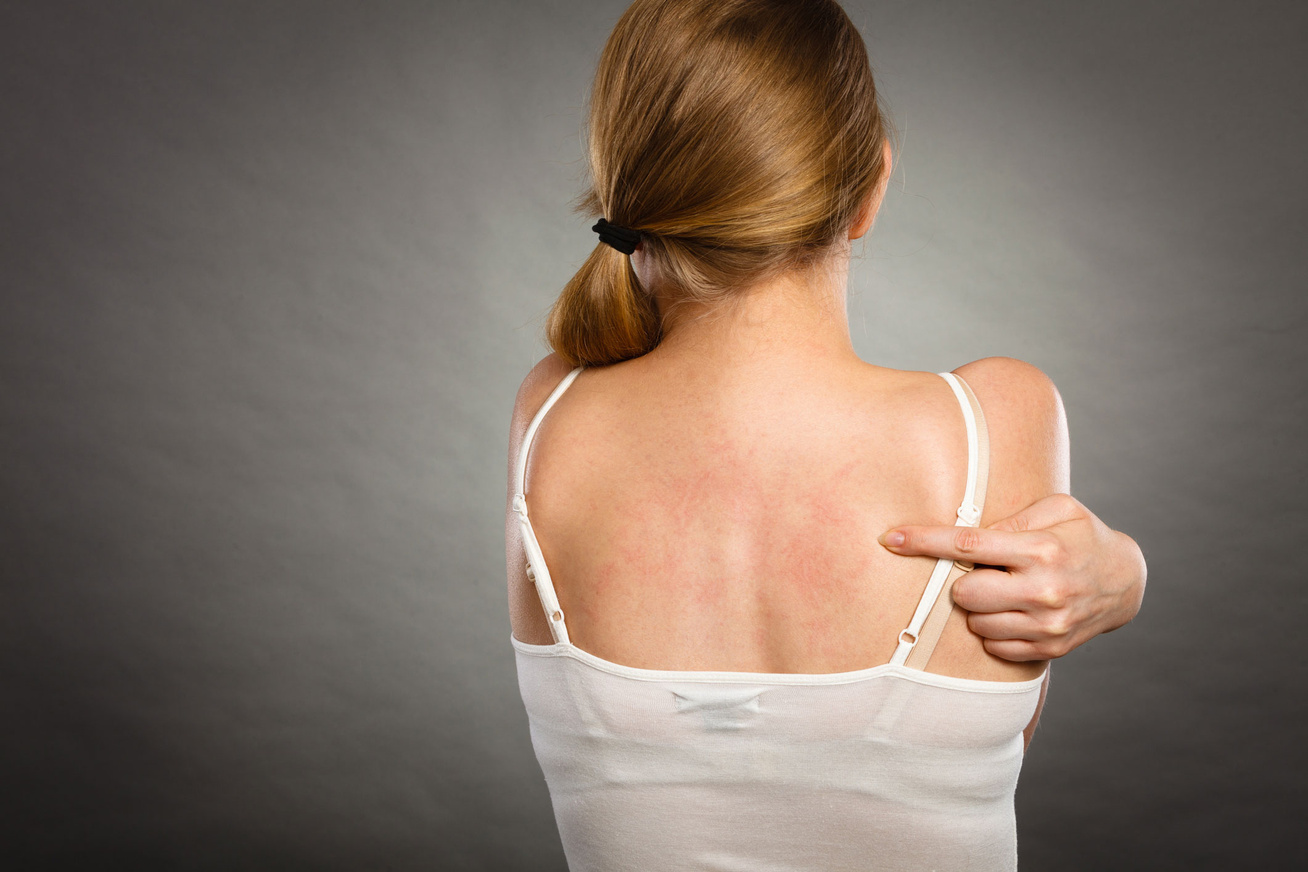 Rózsahámlás tünetei és kezelése