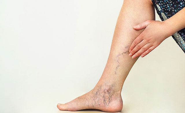 vörös foltok az alsó lábszáron duzzadt lábakon