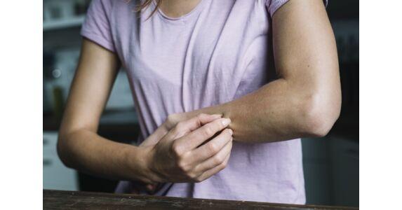 szürke pikkelysömör kezelése