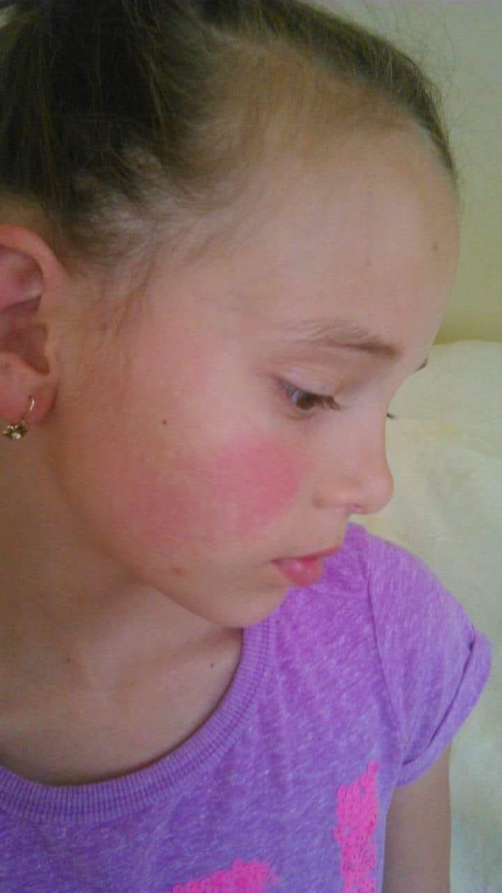 vörös foltok az arcon és a fejen)