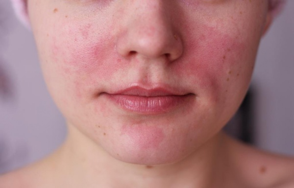 Vörös foltok az arcon lehúzódnak Milyen betegségre utalnak a vörös foltok?