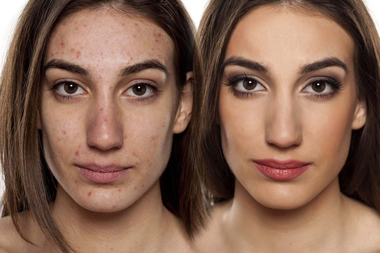 zsíros bőr és vörös foltok az arcon)
