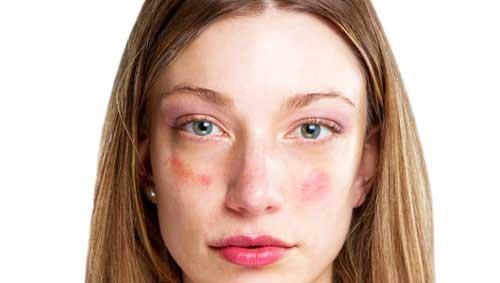 vörös folt van az arcon és egy kicsi belül)